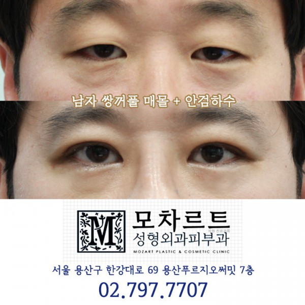 남자 쌍꺼풀매몰 + 안검하수