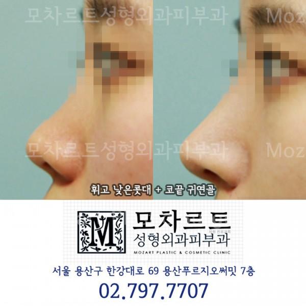 코 귀연골