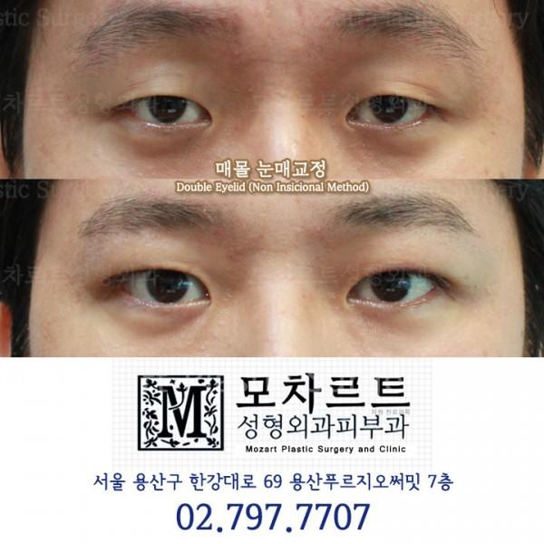 남자 쌍꺼풀 매몰법 + 안검하수 교정