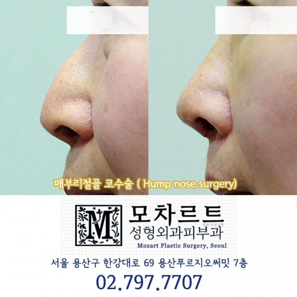 매부리절골 코수술