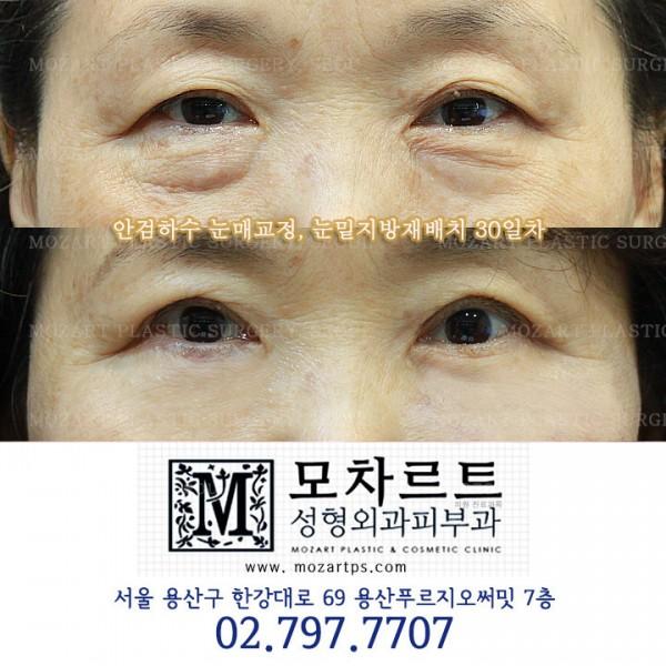 안검하수 눈매교정 + 눈밑지방재배치