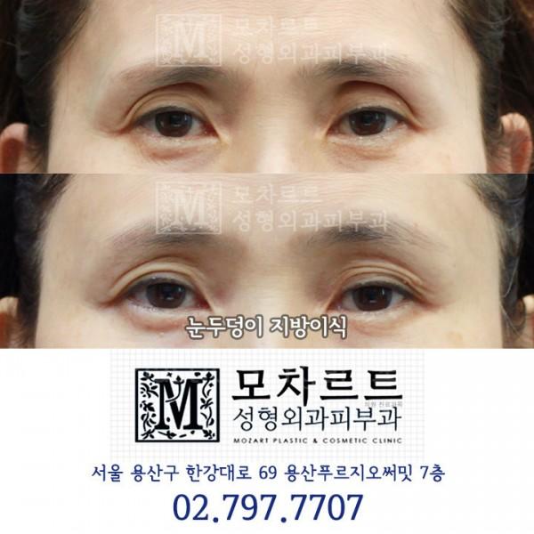 눈두덩이 지방이식