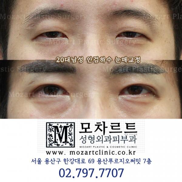 남자 눈매교정