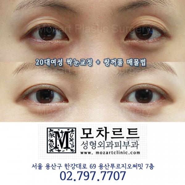 짝눈교정+쌍커풀 매몰법